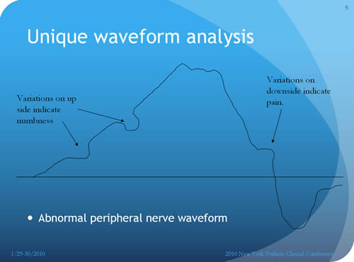 abnormal waveform